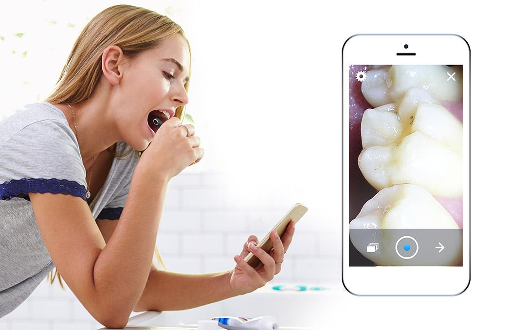 高清牙齿探测仪